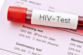 Започва безплатно и анонимно изследване на СПИН в Монтана